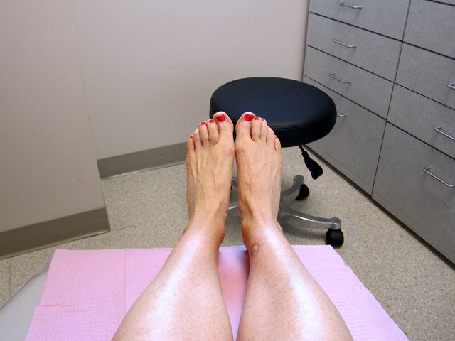 My Poor Runner's Feet…