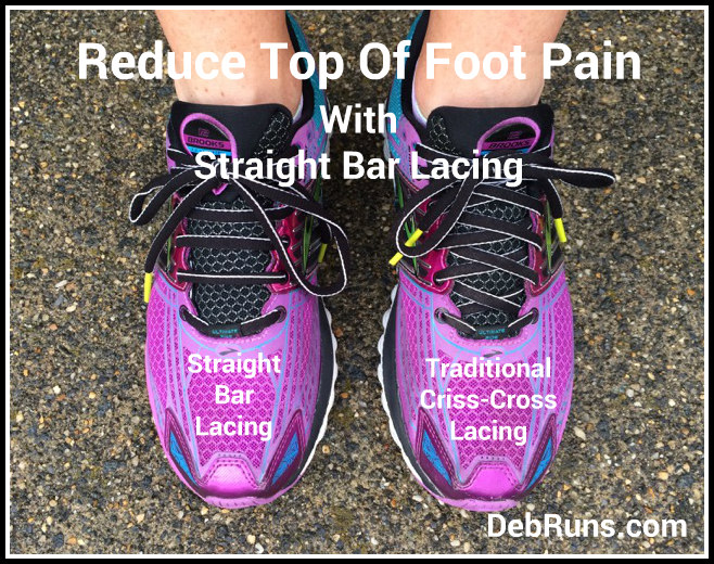 Straight Bar Lacing – A Simple Lacing Change Can Rid Foot Pain